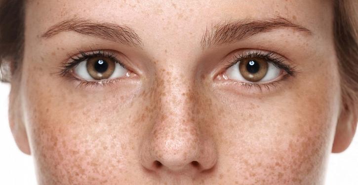 Przebarwienia – skąd się biorą i jak się ich pozbyć?